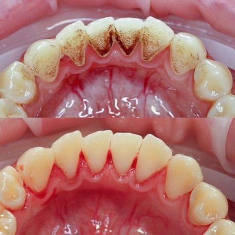 СТОМАТОЛОГ ХАРЬКОВ. Профессиональная чистка зубов