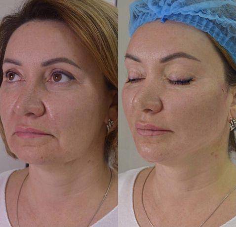 Акция! Биоревитализация,ботокс,чистка лица, пилинг,косметолог Киев