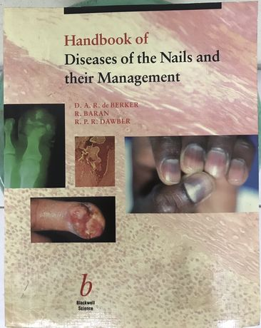 Livro Dermatologia Hanbook of Diseases of Nails and their Management