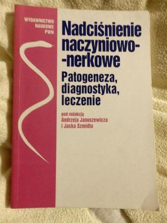 Nadcisnienie naczyniowo nerkowe Patogeneza diagnostyka leczenie