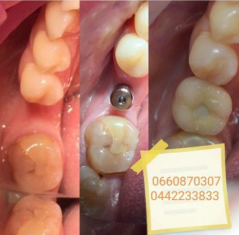 Имплантация зубов в Киеве 2600 грн. за 1 ед.