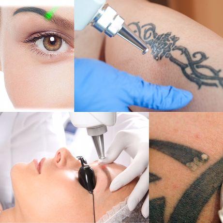 Удаление  татуажа и перманентного макияжа лазером
