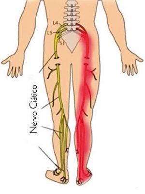 Tratamentos Naaturais para as dores