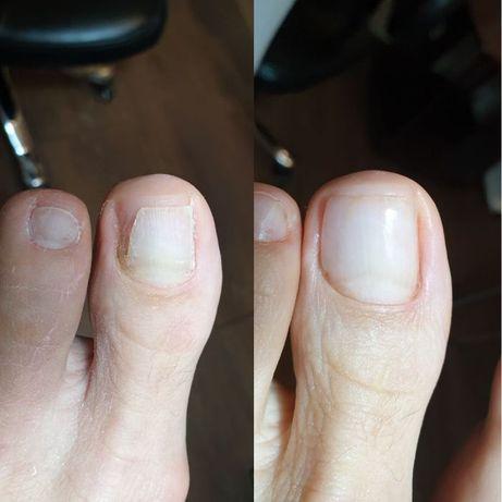 Удаление натоптышей, мозолей, лечение грибка и протезирование ногтей