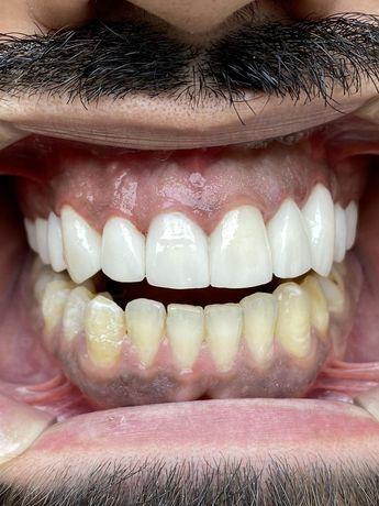 Зуботехническая лаборатория, зубной техник