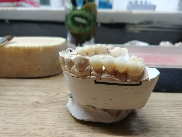 Зубной техник. Первомайск Николаевская область