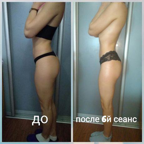 Антицеллюлитный массаж,  коррекция фигуры,  похудеть, массаж осокорки