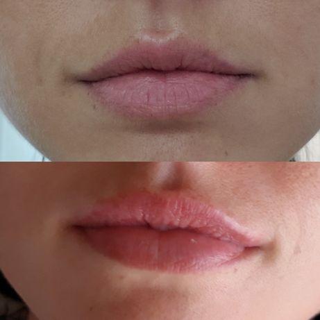 Услуги Косметолога увеличение губ левобережная позняки чистка пилинг