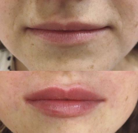ВРАЧ ! Увеличение губ.Контурная пластика.Ринопластика.от2000грн.Татуаж