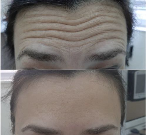 Акция!ботокс+мезотерапия(в подарок),диспорт,врач косметолог,инъекции