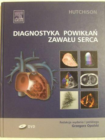 Diagnostyka powikłań zawału serca