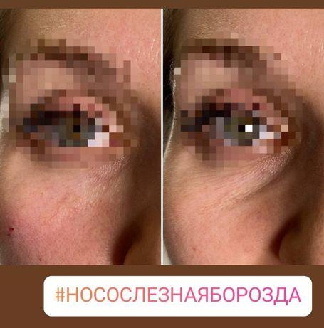 Врач-косметолог, увеличение губ, ботокс, тредлифтинг