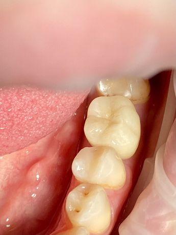 Имплантация зубов Штрауман 11800,Osstem 6800 MegaGen- 5900. Виниры.
