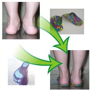 Детские ортопедические индивидуальные стельки в Запорожье