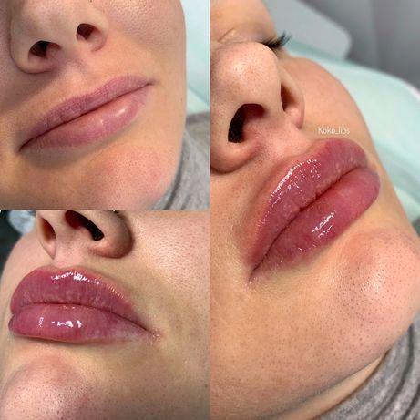 Увеличение губ, Ботокс, мезотерапия