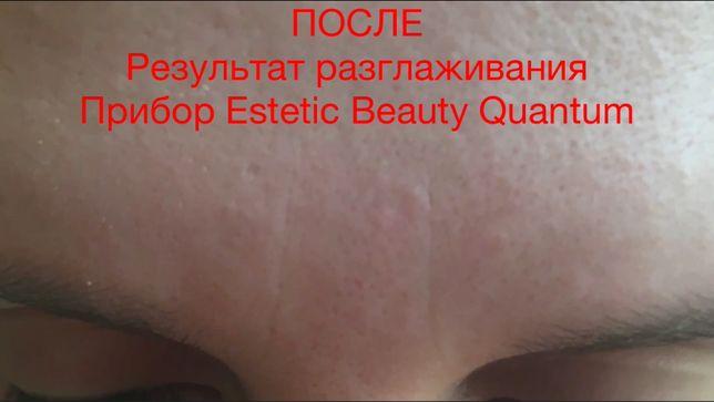 Разглаживание морщин лица и улучшение тонуса с Estetic Beauty Quantum