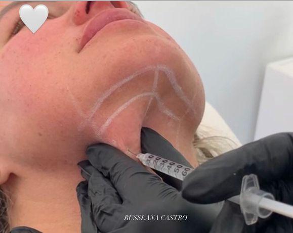 Aplicação Botox, Ácido hialurónico