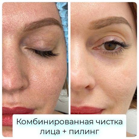 Чистка лица от 500 грн. Комбинированная чистка и др. Косметолог Одесса