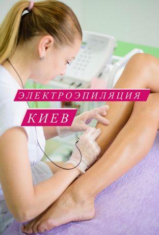 Электроэпиляция Киев, удаление волос навсегда, Эпил -сити