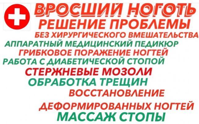 Вросший ноготь. Грибок. Трещины. Подолог (Харьков, м.23 Августа)