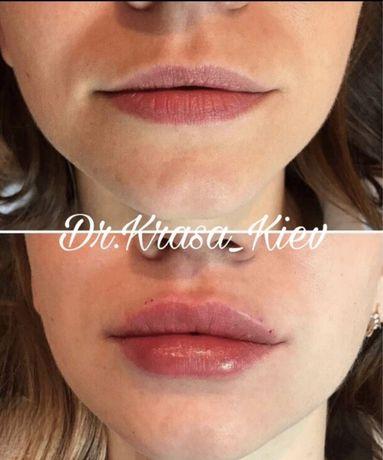 Ищем модель на увеличение губ, углы. Оплата только за препарат.
