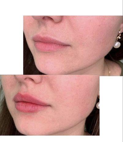 Контурна пластика губ Умань
