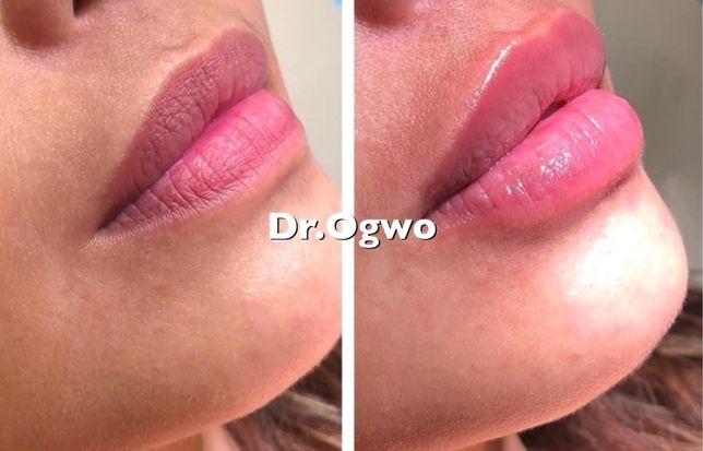 Увеличение губ скул от 1 000 грн. Ботокс. 4-5D нити.Лисьи глазки