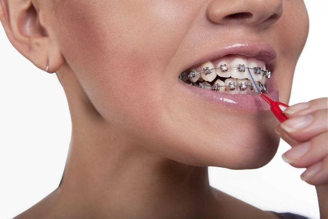 Услуги стоматолога (ортодонт). Недорого,качественно. Киев.