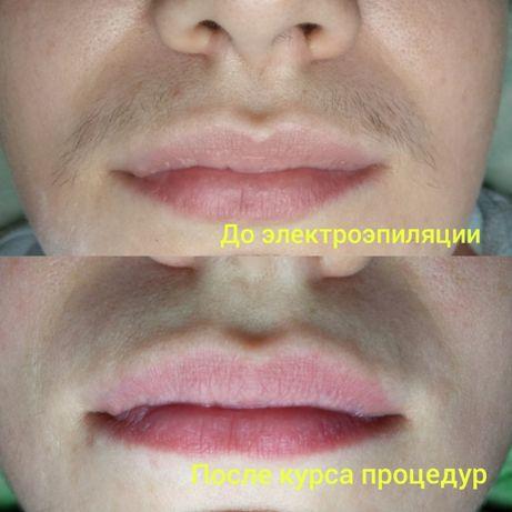 Электроэпиляция - удаление волос навсегда. Харьков, Державинская 1