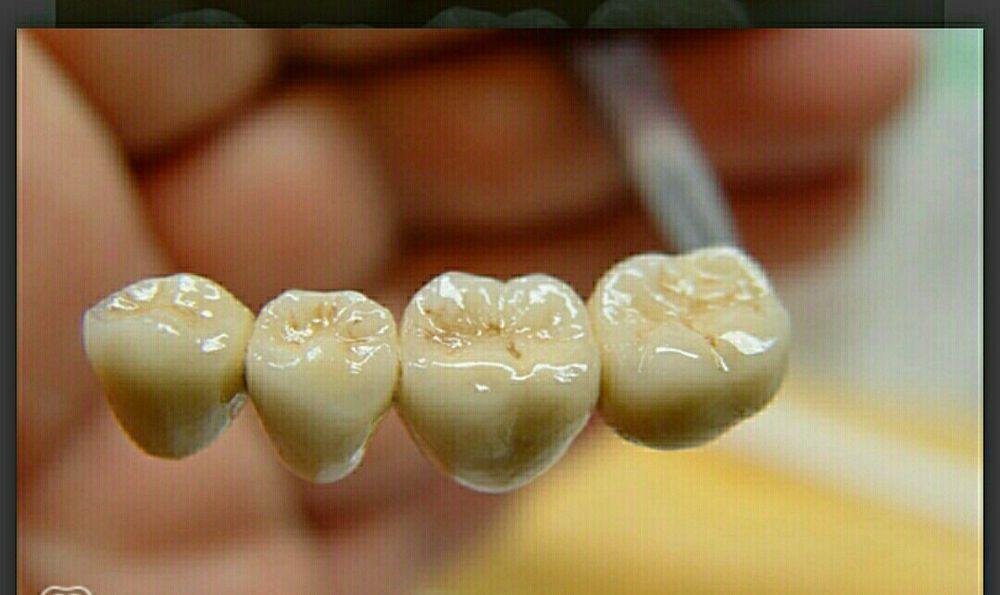 Зубной техник ищет врача-стоматолога для сотрудничества. Крыжановка - изображение 1