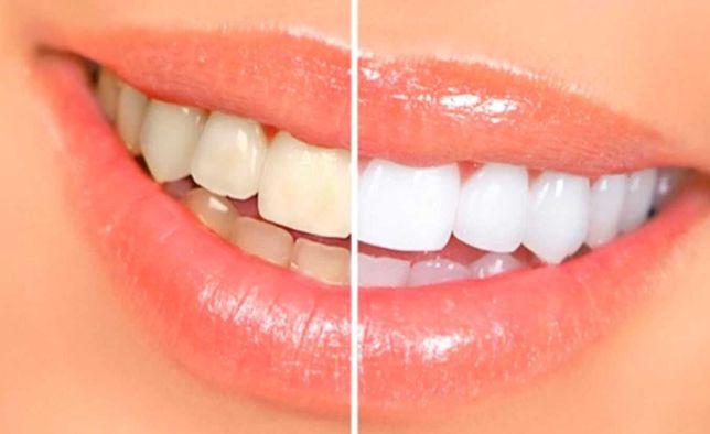 Студия Отбеливания Зубов Продам готовый бизнес