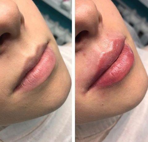 Врач косметолог .Увеличение губ,ботокс, мезотерапия,липолитики
