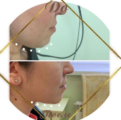 Косметолог увеличение губ липолитик биоревитализация чистка пилинг
