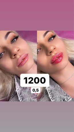 Увеличение губ 0,5-1200 /1 мл- 1750,ботокс 650,липолитики 300