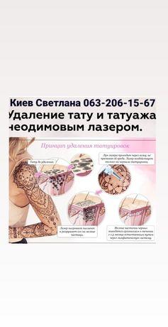 Лазерное удаление тату, перманентного макияжа и Татуировок