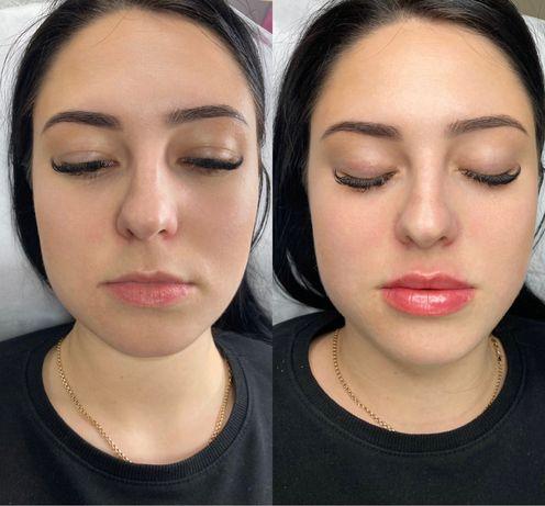 Врач косметолог-инъекционист. Instagram.com/cosmetolog_nata_smachylo