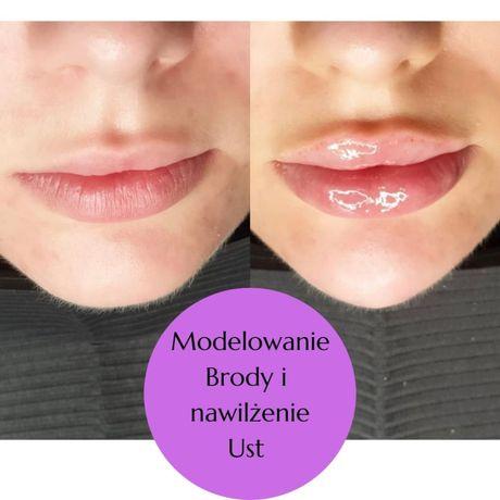 Lipoliza mezoterapia biostymulatory tkankowe modelowanie brody nosa