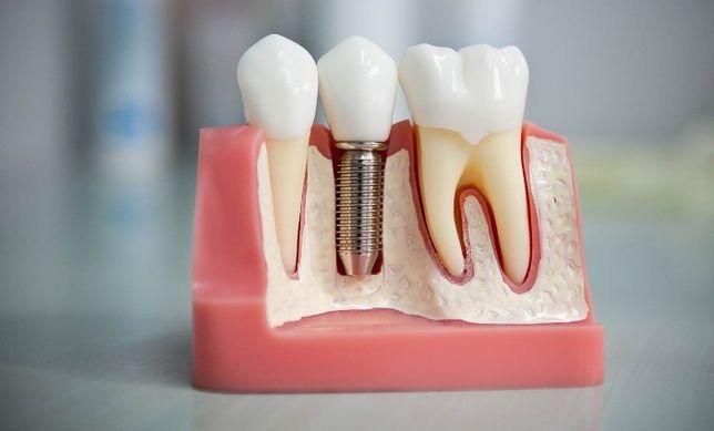 Протезирование зубов, лечение