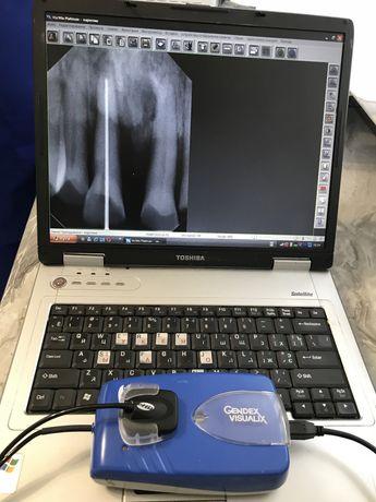 Стоматологічний стоматологический визиограф Gendex, Sirona рентген
