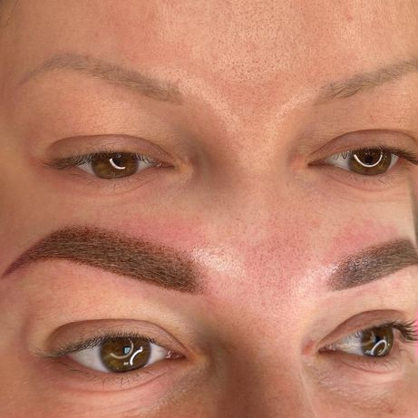 Удаление ремувером татуажа , перманентный макияж 700грн