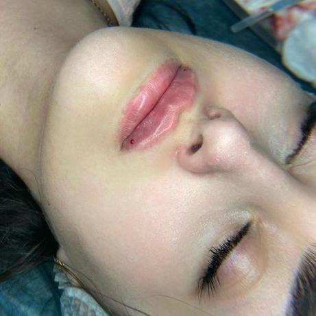 Увеличение губ 2500 грн Красота лица  Косметолог