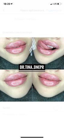 Увеличение губ! Контурная пластика