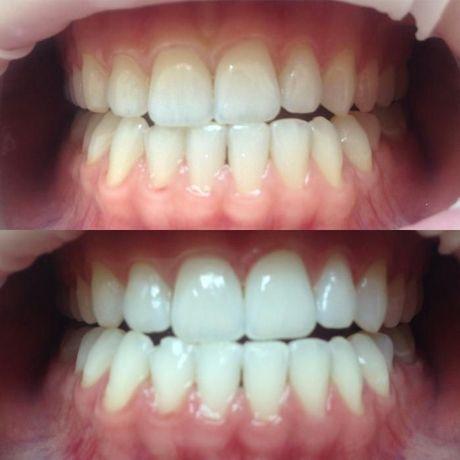 Отбеливание зубов. Цена супер