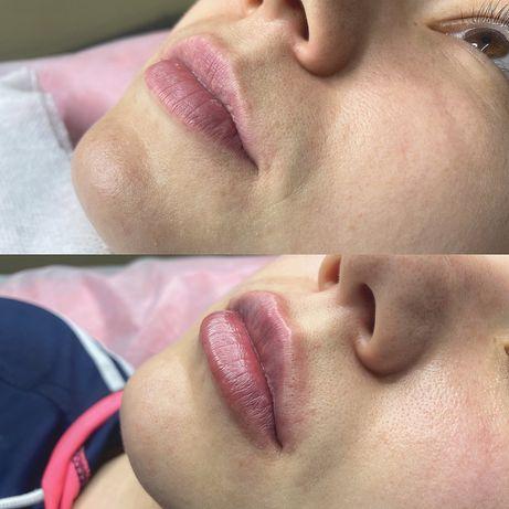 Косметолог. Увеличение губ. Контурная пластика. Мезотерапия.