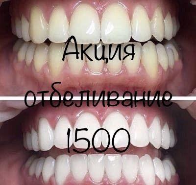 Стоматология (зубы, коронки, виниры, брекеты, отбеливание, пломба)