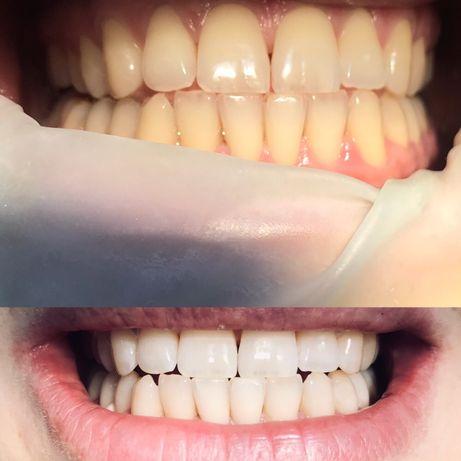 Проф.чистка, снятие зубного камня,фотоотбеливание зубов(новая акция)