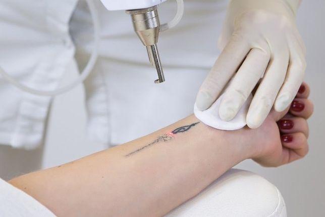 Удаление татуировок / перманентного макияжа