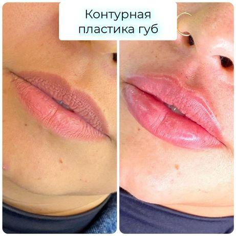 Увеличение губ до 3100 грн. Врач-косметолог. Сертиф. препараты. Центр.