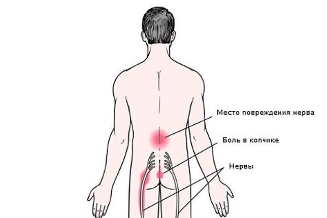 Костоправ - Массажист.