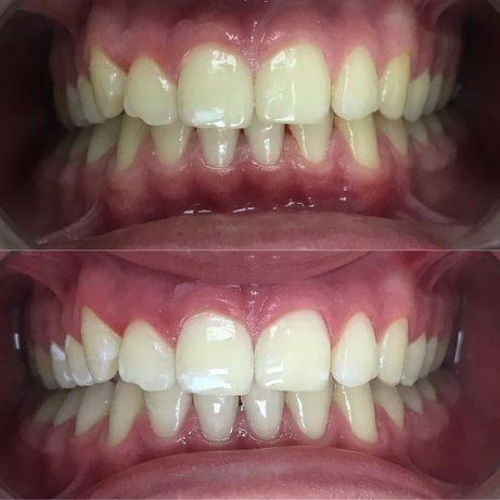Отбеливание зубов Киев-40%